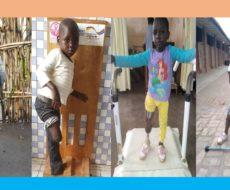 Six personnes en situation de handicap appareillées en prothèse par AFPDE